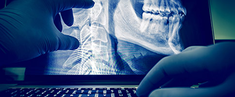 Shaping the Future of Radiology – With AI Deep Learning